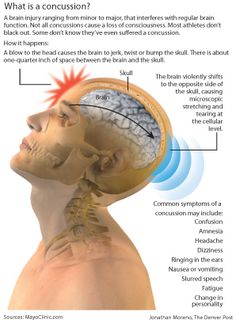 Concussion by Jonathan Moreno