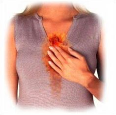 Guide for Heartburn Causes and Prevention