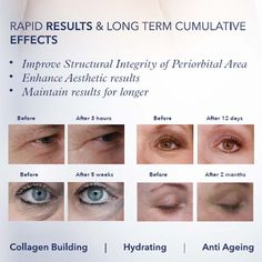 Before & Afters 👀 with Youth Eye Complex. Advanced eye care to . Types Of Sunglasses, Dry Eyes Causes, Eye Damage, Smoking Causes, Eye Infections, Healthy Eyes, Eyes Problems, Sensitive Eyes
