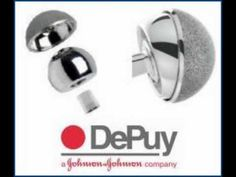 "DePuy Orthopaedics, Inc., a division of Johnson and Johnson instituted a recall of DePuy Hip Replacement in the year 2010. DePuy recalled its ASR XL Acetabular metal-on-metal hip replacement system on August 24, 2010, owing to a study which indicated that the five year failure rate of this product was approximately 13%, which implied that 1 in every 8 patients, who had undergone this surgery, might have to undergo a ""revision"" surgery again."