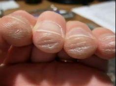 David Garrett , les doigts du violoniste après avoir joué