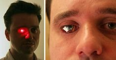 Rob Spence is on a quest to create an eye that can contain a power source and working camera. In order to gain publicity for his Eyeborg project, he proved that a power source could, in fact, be placed within an eye socket, by creating a shocking red LED eye. This stunt has launched the project into the limelight.