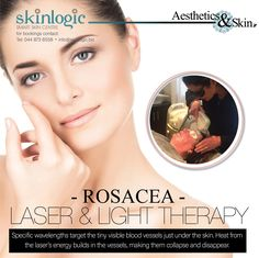 #Rosacea. #Laser and Light therapy. Specific wavelengths target the tiny visible blood vessels just under the skin. Heat from the laser's energy builds in the vessels, making them collapse and disappear. #bestoftheday #love #health #motivation #beautiful #aesthetics #SkinlogicSA #SkinHealth #Skin