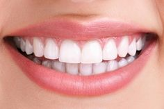 Teeth whitening is the most inexpensive, easy, and effortless method to get rid of stained and discolored teeth.