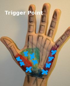 Treating trigger points in the hand -- Athletes treating Athletes (great site for learning your surface anatomy) Cupping Therapy, Massage Therapy, Hand Therapy, Physical Therapy, Psoas Release, Foam Roller Exercises, Trigger Point Therapy, Reflexology Massage, Hand Massage