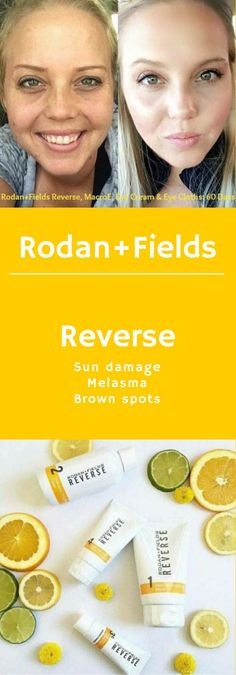 """Ready to say """"good-bye"""" to your sun damage...melasma...brown spots? Reverse it! Ask me how to save 10% and get free shipping! 60 Day Empty Bottle Money Back Guarantee! https://loridevaney.myrandf.com/Shop/Reverse"""