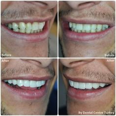 A smile makeover consisting of 9 E.Max Crowns along the upper jaw and lower jaw Professional Teeth Whitening. Smile Makeover, Dental Bridge, Smile Design, Dentist In, Dental Implants, Teeth Whitening, Improve Yourself, Crowns, Holiday