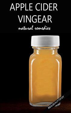 Amazing remedies using apple cider vinegar