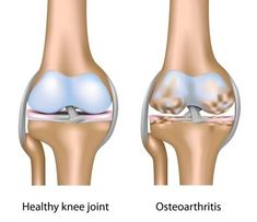Watch This Video Proven Homemade Remedies for Arthritis and Joint Pain Ideas. Staggering Homemade Remedies for Arthritis and Joint Pain Ideas. Knee Arthritis, Rheumatoid Arthritis Symptoms, Torn Meniscus Exercises, Knee Exercises, Stretches, Knee Osteoarthritis, Cartilage, Stem Cell Therapy, Knee Surgery