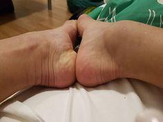 """Jade mostra tornozelo inchado: """"Está grande ainda, mas estou bem melhor""""…"""