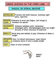 Radial Nerve palsy - wrist drop