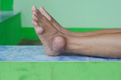 Gout May Be Associated With Increased Risk for Epilepsy - Rheumatology Advisor Rheumatoid Arthritis Diet, Natural Remedies For Arthritis, Knee Arthritis, Rheumatoid Arthritis Symptoms, Types Of Arthritis, Juvenile Arthritis, Arthritis Exercises, Arthritis Relief, Fibromyalgia