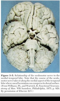 note the relationship between the oculomotor nerve and the medial temporal lobe.. an uncal herniation can compress this nerve, leading to the dilated pupil (usually ipsilateral)