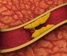 Природное средство, которое понижает уровень холестерина и очищает кровеносные сосуды - health info