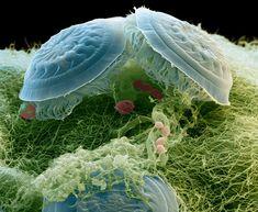Under Scanning Electron Microscope; Trichodina ciliates