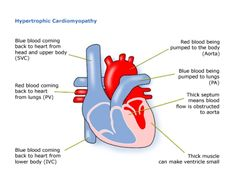cardiomyopathy research paper