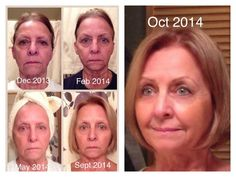 """This is Diane, Here's what she had to say about her journey with Rodan+Fields: """"My 8 month journey so far (as of September 2014) using the Rodan + Fields Redefine Regimen with the Amp Roller and 1 night a week the Macro E. I've since added our awesome eye cream! I started this process back in December when I bought my Regimen from my friend Brenda Redinger, I watched her posts for several months and thought why not, money back guarantee so I did. I look at these pictures of me with no make…"""