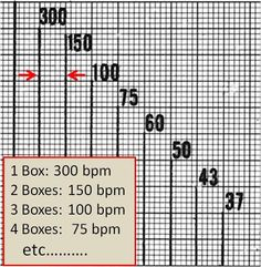 Calculating HEART RATE EASILY ON ECG ::  -- Select a R wave on 1 thick line -- Select the next R wave complex . -- Measure the large squares amongst them. ... -- It's easier when remembered : 1 large square = 300 bpm, second large square = 150 bpm and so on .....   For more precise Heart rate ::  count the number of small squares between two R - R complexes and divide it by 1500 Remember 1 large square = 0.2 seconds = 5 small squares