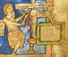 Cutting the hemorrhoids  'emoroida inciditur sic'  Pseudo-Hippocrates, 'Epistula ad Antiochum regem' and other medical works, England or Netherlands 12th century (British Library, Harley 1585, fol. 9r) Discarding Images