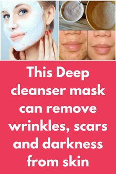 This Deep cleanser mask will remove wrinkles, scars and darkness from skin in just 2 uses Face Mask For Spots, Easy Face Masks, At Home Face Mask, Face Mask For Blackheads, Pimples, Best Homemade Face Mask, Homemade Masks, Lighten Scars, Natural Acne Remedies