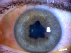 Iritis with synechia. Iritis - inflammation of the iris. Can cause pain, tearing, blurred vision, small pupil(miosis) and a red congested eye. This patient presents bilateral iritis with a synechia in both eyes. A synechia is adhesion(s) that bind the iris to any adjacent structures.