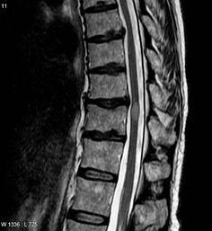 La Mielitis Transversa, enfermedad ocasionada por una inflamación de la médula espinal. Esto puede ocasionar la destrucción de la mielina de las fibras nerviosas, llegando en los casos extremos a destruir las terminaciones nerviosas. Entre el cuadro de síntomas más comunes se encuentran el dolor, la parálisis muscular y las alteraciones intestinales entre otras. Para el diagnóstico resulta fundamental usar la Resonancia Magnética. La buena noticia es que puede tratarse en la actualidad con…