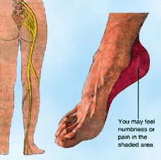 Podiatrist: Plantar Fasciitis and Heel Pain (click for more info)