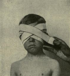 Figure of eight bandage of both eyes, from Edward M. Foote's A text-book of minor surgery, 1909