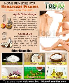 Home Remedies for Keratosis Pilaris (Bumps on the Skin) | Top 10 Home Remedies by DM's