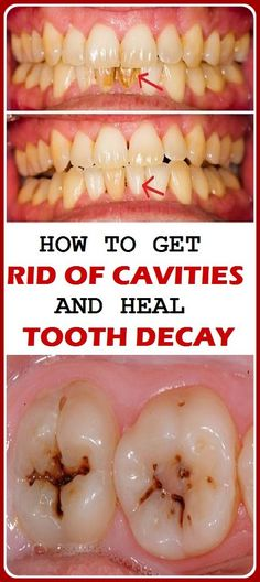 Nowadays the oral health problem and dental decay have become a common problem of lots of people. The main reason behind this is our lifestyle habits. As we eat junk food and not caring that much on our dental health that buildup by food and bacteria form Oral Health, Dental Health, Health Care, Teeth Health, Dental Care, What Causes Tooth Decay, Cure Tooth Decay, Reverse Cavities, Heal Cavities
