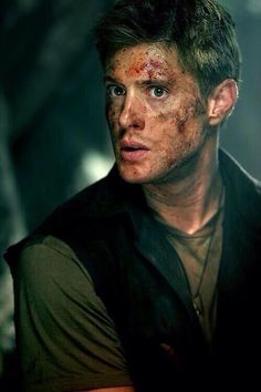 Someone with that much blood on their face shouldn't be so dreamy. Welcome to Supernatural.