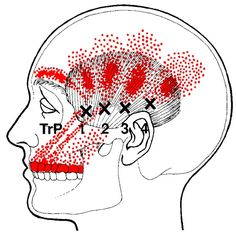 temporalis muscle trigger points and referred pain pattern