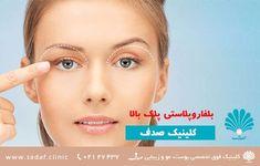 « کلینیک تخصصی پوست، مو و زیبایی صدف - بلفاروپلاستی پلک بالا »  از نظر ظاهری علائم پوست اضافی و پف پلک سبب سنگینی روی چشم می شود. گاهی نیز میدان بینایی فوقانی محدود می شوند. در برخی موارد افتادگی ابرو وپیشانی سبب تشدید علائم فوق می گردد. درمان عمل جراحی بلفارو پلاستی، عمل جراحی پلاستیک پلک چشم می باشد. جراحی بلفارو پلاستی شامل برداشتن ظریف پوستهای اضافه و تنظیم چربی های داخل پلک می باشد.
