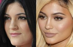Kylie Jenner reveals how often she has had plastic surgeryKylie Jenner reveals how often she has had plastic surgeryKylie Jenner proves rumors about plastic surgery are false - .Kylie Jenner proves rumors about Kylie Jenner Plastic Surgery, Kardashian Plastic Surgery, Nose Plastic Surgery, Celebrity Plastic Surgery, Nose Surgery, Kylie Before Surgery, Kylie Jenner Before After, Kendall Jenner Nose Job, Plastic Surgery Korea