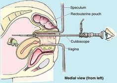 Culdoscopy: The introduction of a viewing tube (called an endoscope or culdoscope) through the end of the vagina into the rectouterine pouch (the pouch of Douglas), an extension of the peritoneal cavity between the rectum and back wall of the uterus.