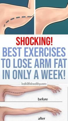 Arm Workout Challenge for Women to Lose Arm Fat If you're wondering how to lose arm fat fast?, give this 30 day arm workout challenge a go. Your arms are an important part of your body. In fact, there is no…Read more → Fitness Tips, Fitness Models, Health Fitness, Fitness Pal, Fitness Quotes, Combattre La Cellulite, Lose Weight, Weight Loss, Fat To Fit