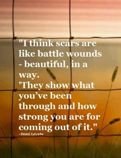 Scars ( don't ever be ashamed of a scar. It shows you that you were stronger then what tried to hurt you)
