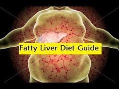 Fatty Liver Diet Guide - Fatty Liver Diet Recipes