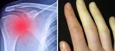 Vücudumuzun Verdiği Ve Dikkate Alınması Gereken 10 Sinyal