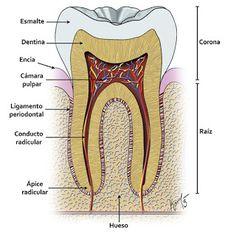 Damaged Dental Bridge Did You Know - Saude Bucal Dental Hygiene School, Dental Assistant, Oral Hygiene, Dental Hygienist, Dental Art, Dental Teeth, Dental Health Month, Oral Health, Teeth Health