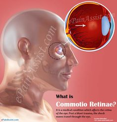 What is Commotio Retinae? Eye Pain, The Retina, Shock Wave, Information Center, Trauma, Recovery, Conditioner, Waves, Medical