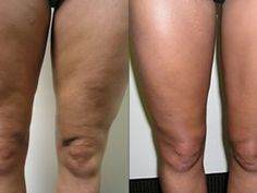 Cellulite Remedies, Girl Names, Health Fitness, Pedicure, Varicose Veins, At Home Spa, Diet, Droopy Eyes, Thermomix