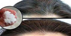 Come sbarazzarsi dei capelli bianchi in un colpo solo: bastano pochi minuti e tre ingredienti, l'incredibile ricetta che ringiovanisce tutto in breve tempo Come sbarazzarsi dei ?