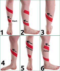 Shin Splint Taping Step by Step Kt Tape Shin Splints, Ankle Taping, Shin Splint Exercises, K Tape, Kinesiology Taping, Sport One, Learn To Run, Take Care Of Your Body, Athletic Training