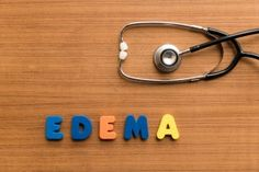 Edema is swelling under the skin. Find out how to prevent this condition and how to treat it. Exercise & a low salt diet are key to edema prevention Liver Failure, Signs And Symptoms, Health, Exercise, Motivation, Fitness, Tips, Ejercicio, Gymnastics