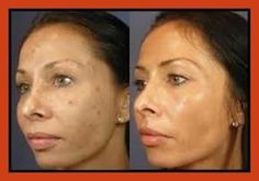 Acne Scar Removal - Acne Treatment in A Natural Way >>> Read more at the image link. Colorado Springs, Chemical Skin Peel, Skin Peeling On Face, Skin Care Routine Steps, Acne Scar Removal, Acne Spots, Lighten Skin, Acne Skin, How To Treat Acne
