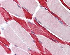 Staining of formalin fixed, paraffin embedded human skeletal muscle with Rabbit anti Human USP7 (AHP1937)