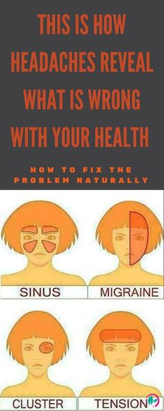 is How Headaches Reveal What is Wrong With Your Health And How To Fix The Problem Naturally A normal workout may substitute the medications.A normal workout may substitute the medications. Good Health Tips, Health And Fitness Tips, Health Advice, Health And Beauty, Health And Wellness, Wellness Tips, Health Exercise, Sinus Migraine, Migraine