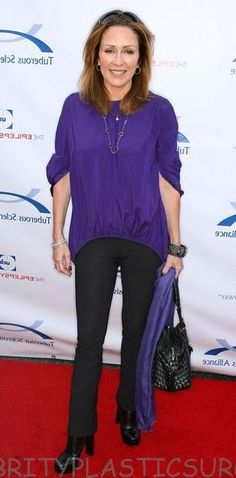 patricia heaton after breast implant in 2008