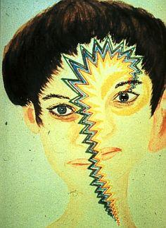 migraine aura. Help us help others. http://MigraEase.com #migraine #headache #cluster #natural